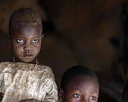 Sudan'da Çocuk Ölümleri Artıyor