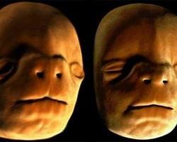 İnsan Yüzünün Anne Karnındaki Oluşumu