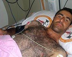 Polisin 'Orantılı' Şiddeti: Beyin Kanaması Geçirdi!