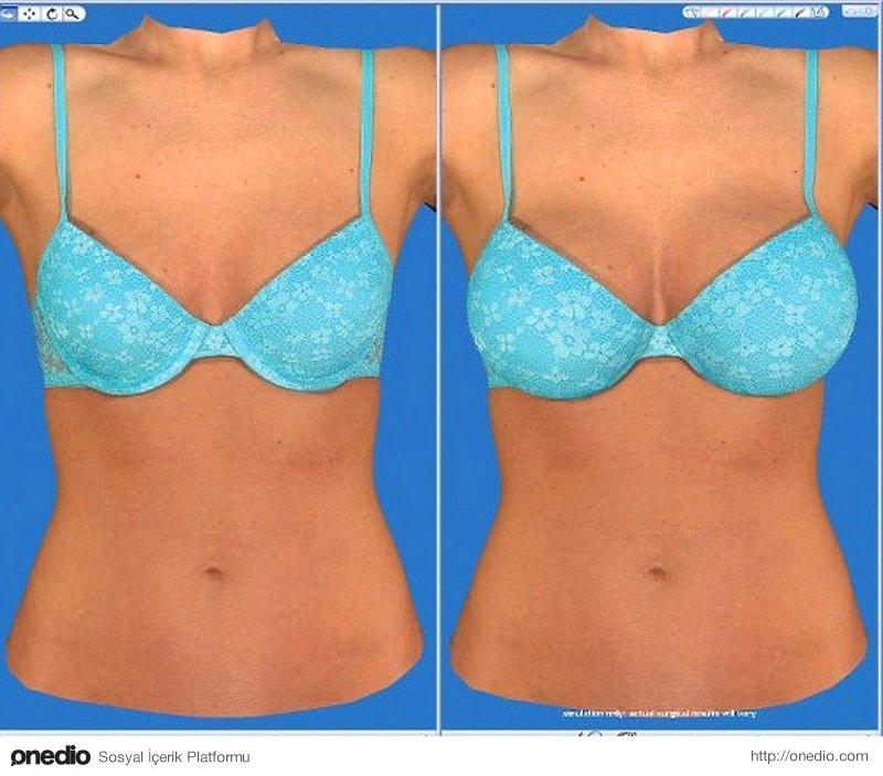 Before and after photos of breast augmentation surgery including saline and silicone gel breast implants  Cup Size Change B to C  Breast Augmentation