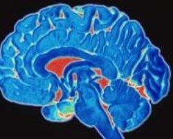 Davranış Bozukluğu Sergileyen Kızların Beyinleri Farklı