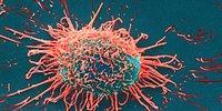 Kanser Tedavisinde Umut Verici Yeni Gelişmeler