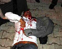 BDP Yöneticisi Başından Vuruldu   T24
