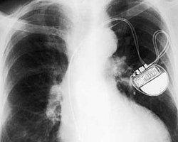 Kalpten Şaj Edilen Kalp Pilleri