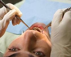 Diş Doktorundan Neden Korkuyoruz