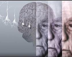 Alzheimer'ın Genetik İpuçları Bulundu