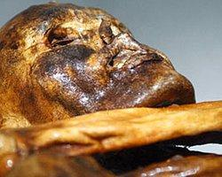 'Ötzi Başına Aldığı Darbeyle Ölmüş Olabilir'