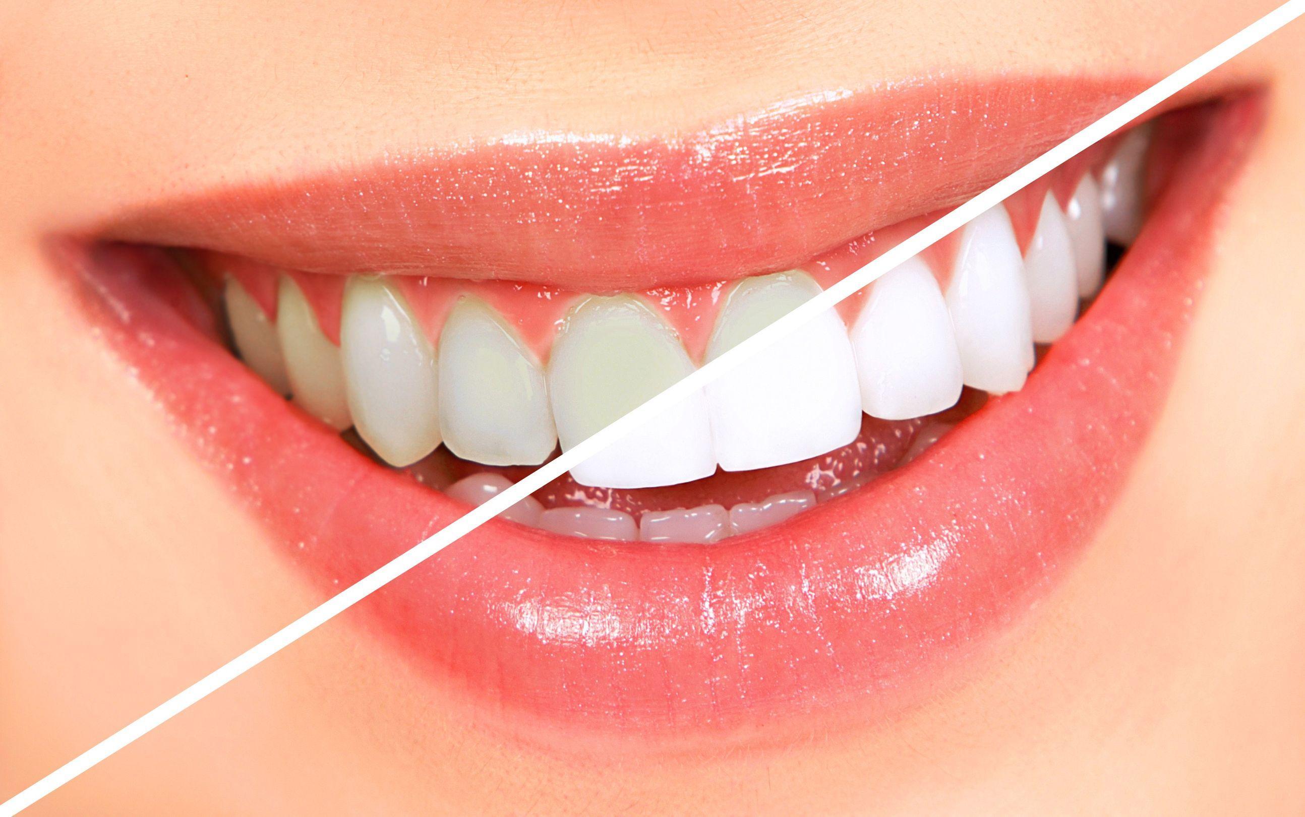 Dişlerinizi Beyazlatmak İçin Ev Yapımı Formül