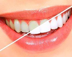 Dr. Mehmet Öz'den Diş Beyazlatma Formülü