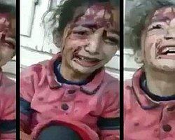 Suriye'de bombalı saldırıda yaralanan çocuğun isyanı...