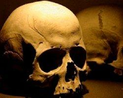 Bin 800 yıllık kafatasına 3 boyutlu yazıcıyla yeni yüz kazandırıldı.