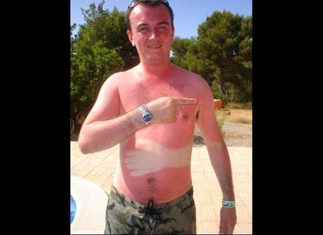 18. Tatilinizi zehre dönüştüren şekilsiz güneş yanıkları.