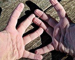 Parmaklar Suda Neden Buruşur?