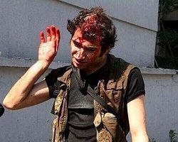 İstanbul'da Çıkan Olaylarda 9 Gazeteci Yaralandı