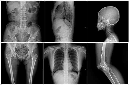 Röntgen Işınları