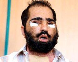 Altıncı Yüz Nakli Yapılan Salih Üslün'ün Yüzü Çıkartılıyor