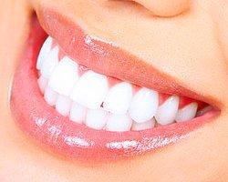 Dişlerin Ağartılmasında Kullanılan Teknikler