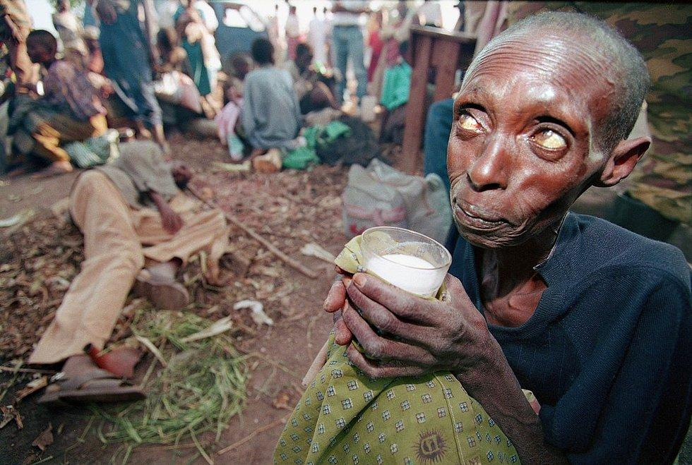Ruanda'da Jean Marc Bouju tarafından 1994 yılında çekilen fotoğraf, Ruandalı isyancılarla devlet güçleri arasındaki çatışma sonucu açlık ve hastalıkla mücadele eden halkın dramını ortaya koyuyor.