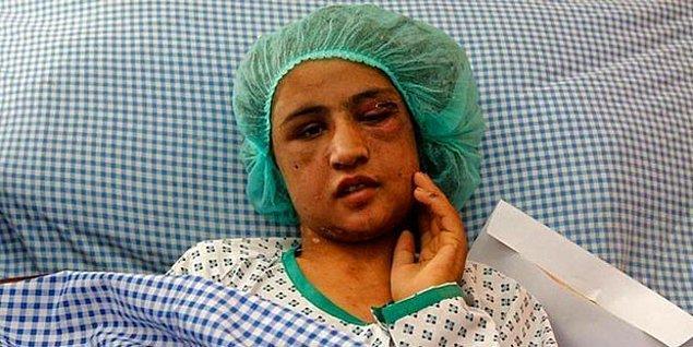 7.   Türkiye'de kadınlar %97 oranında şiddete maruz kalıyorlar.
