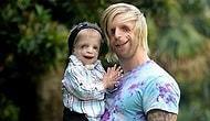 Ömrünü Kendisiyle Aynı Rahatsızlığa Sahip Çocukları Hayata Bağlamaya Adayan Mükemmel İnsan