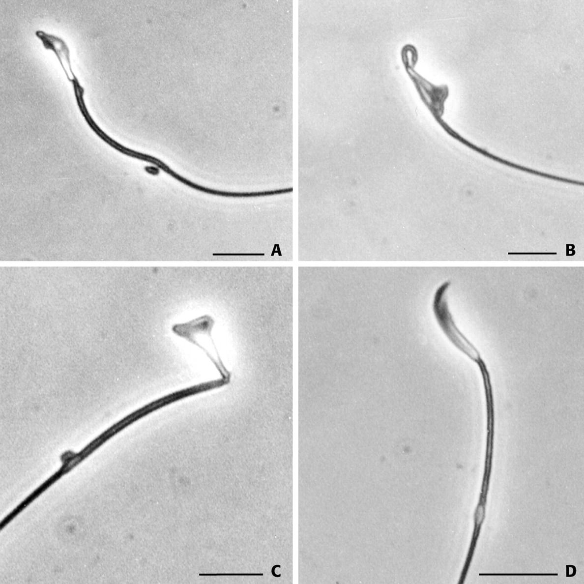 sperm Evidence kamikazee