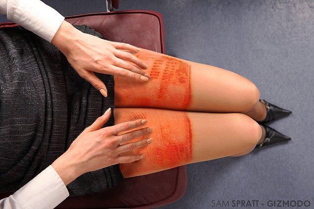 7. Laptopun bacakları ısıtmaktan, yakmaya geçmesi