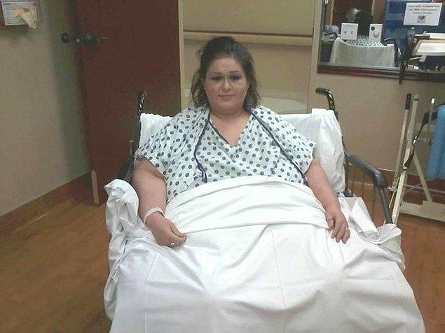 Toplamda 11 ameliyat geçirdikten sonra Marya vücudunun %80'inini kaybetmiş oldu.