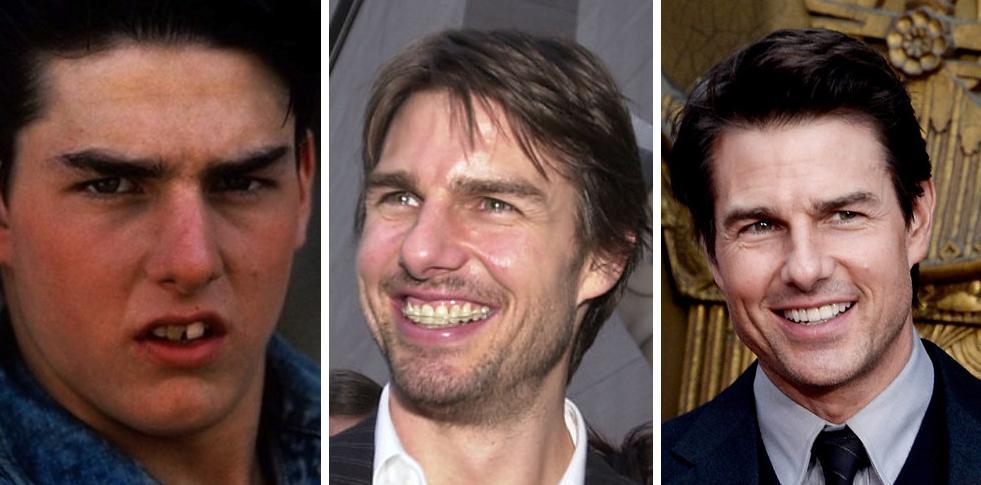 голливудская улыбка виниры