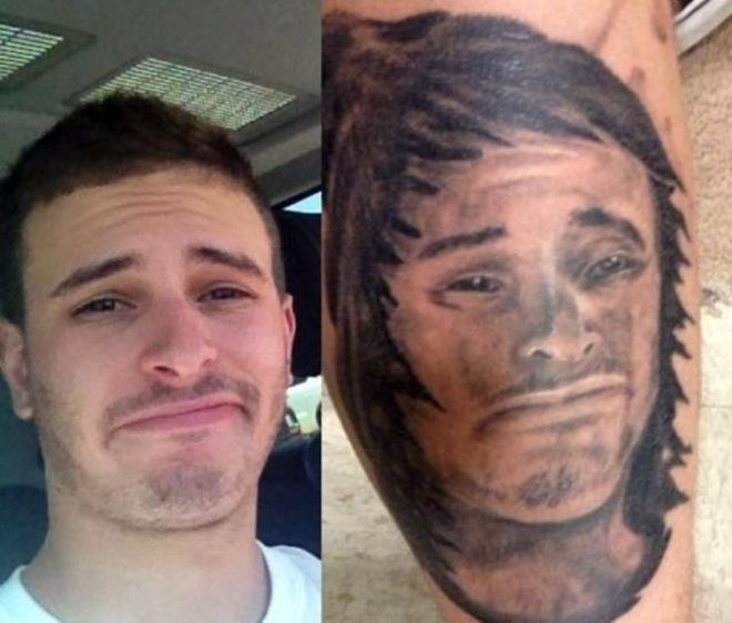 Фото последствия татуировок