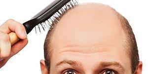 Kellik Çözümsüz Bir Sorun Değildir: 22 Maddeyle Saç Dökülmesini Durdurmanın Yolları