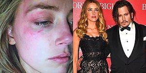 Meğer Olay Bambaşkaymış: Amber Heard Johnny Depp'ten Sürekli Dayak Yediğini İddia Etti!