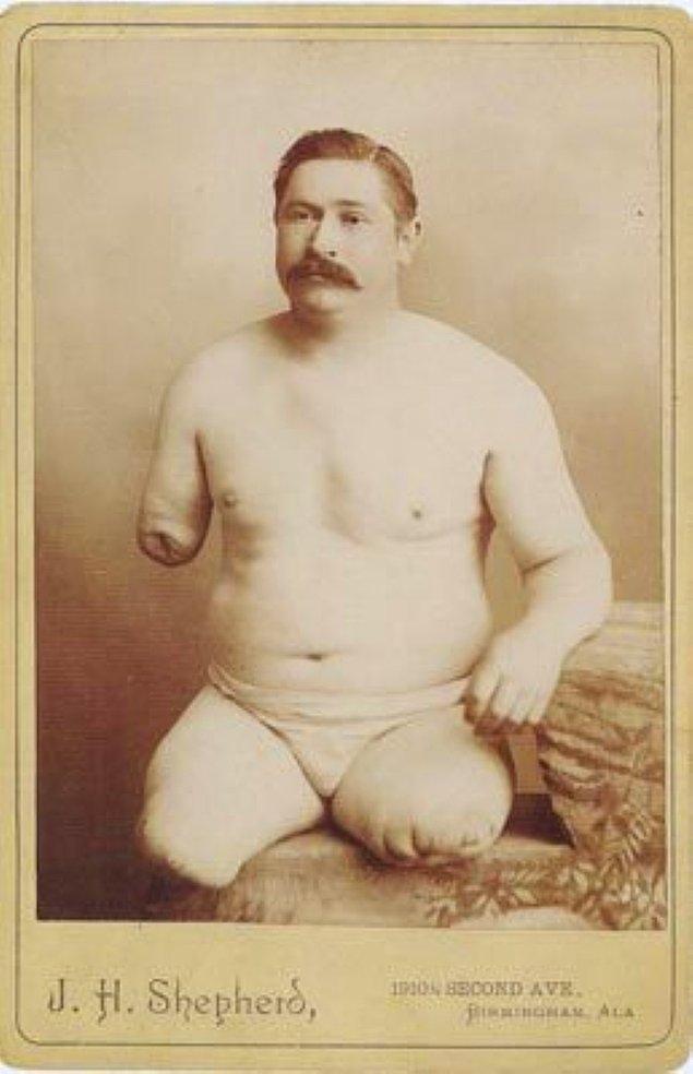 11. Tren kazasında bir kolunu ve 2 bacağını birden kaybeden bu adam, Amerika'nın en ünlü ampute sporcularından birisi olarak bilniyordu.