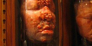 İnsan Yüzleri, Kopmuş Uzuvlar ve Mide Bulandırıcı Şeylerin Sergilendiği Mütter Müzesi