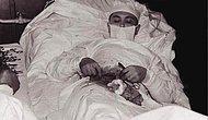 Antik Çağlardan Kalma Kan Donduran Bir Ameliyat Prosedürü: Trepanasyon