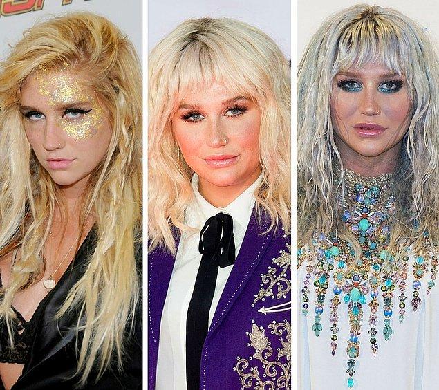 4. Kesha