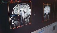 Beyin Tarayıcı
