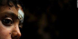 Çocuğa Yönelik Şiddet Hakkında Bilmeniz Gereken 10 Gerçek