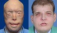 Yüzünün Yanmasının Ardından Dünyanın En Kapsamlı Yüz Nakli Yapılan Adam: Patrick Hardison