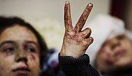 1 Eylül Dünya Barış Günü: Fotoğrafın Ayrıntısı mı Yoksa Bütünü mü?