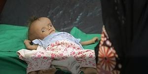 Yemen'de Savaşın Ortasında Kalarak Kıtlıktan Ölen Çocuklar