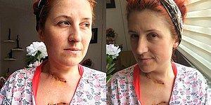 Kadına Şiddet Bitmiyor! Eski Sevgilisi Tarafından Falçatayla Saldırıya Uğrayan Tuba