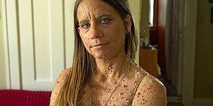 'Tek İstediğim Sevilmek': Nadir Hastalığı Sebebiyle Cildindeki 6000 Tümör ile Savaşan Kadın