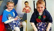 Acımasız Bir Cilt Hastalığıyla Gülümsemekten Vazgeçmeden Savaşan 11 Yaşındaki Rhys Williams