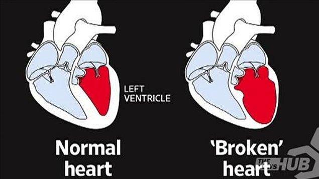 Kırık Kalp Sendromu (takotsubo sendromu), 1991'den beri biliniyor. Bilimsel isminden, ilk olarak Japon bilim adamları tarafından tespit edildiğini anlıyoruz 🙃