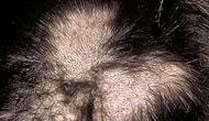 İnsanın Engel Olamadığı Bir Dürtüyle Kendi Saçını Koparıp Yolduğu Hastalık: Trikotillomani