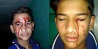 Tıp Bilimi Çaresiz Kaldı! Bazen Günde 10 Defa Kan Ağlayan Hindistanlı Stigmata Çocuk