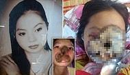 Genç Kadının Bütün Yüzünü Kaplayarak Ölüme Sürükleyen Burun Enfeksiyonu