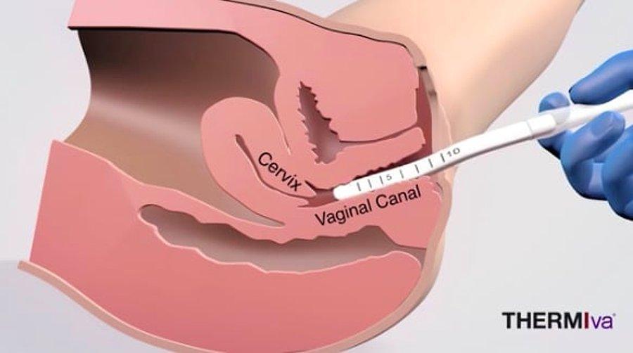 sperm hareketini hizlandiran ilaзlar
