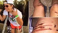 Köpek Balığının Burnuna Yumruk Atarak Saldırıdan Kurtulan 17 Yaşındaki Genç Kız