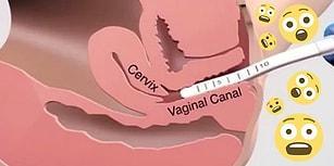 Jinekologlara Göre Kadınlar Arasında En Popüler 9 Vajina İşleminin Bilinmeyen Noktaları